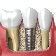 A dental implant