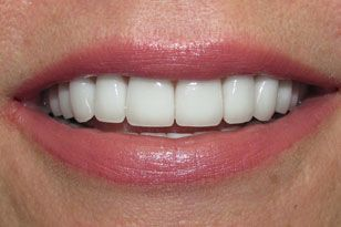 Bright white top front teeth after