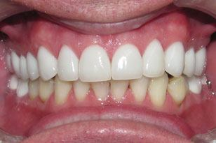 Reparied and cosmetically enhanced white smile after
