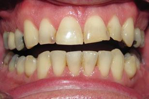Severely damaged and discolored yellow smile before