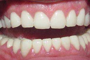 Flawless smile after full mouth restoration after
