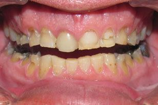 Full mouth decay and dental discoloration before