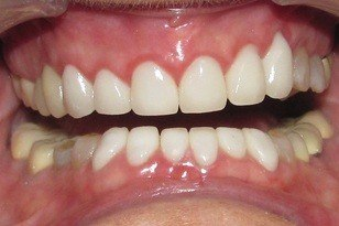 White and healthy top and bottom teeth after