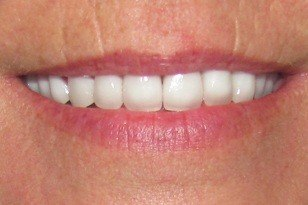 Yellowed tooth bright white after