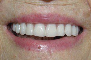 Natural looking denture after