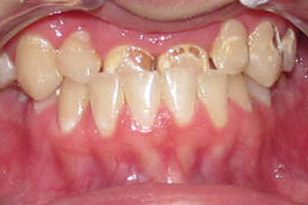 Severe overbite before treatment