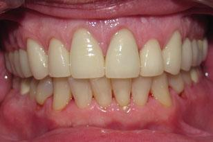 White smile after treatment