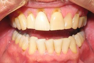 Yellow teeth before treatment