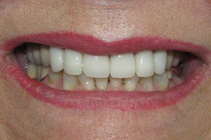 Closeup of beautiful white smile after