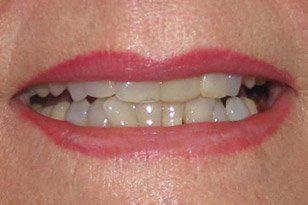 Closeup of discolored smile before