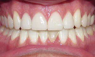 Properly spaced and brilliant white smile after