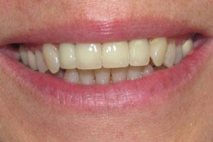 Repaired front tooth after treatment