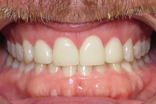 White healthy and evenly spaced teeth after