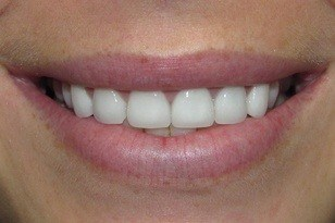White teeth after