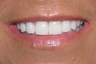 Flawlessly aligned smile and brilliant white teeth  after