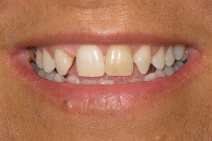 Unevenly spaced smile and dark colored front tooth before
