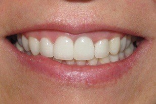 Closeup of smile with white front tooth after