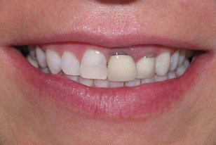 Closeup of smile with dark stained front tooth before