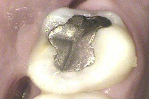Tooth with large metal filling before