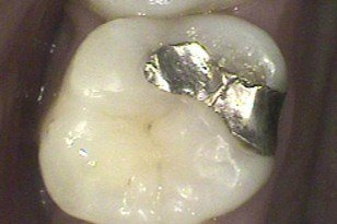 Closeup of tooth with small metal filling before