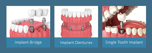 Chart with types of dental implants