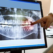 Dental x-rays on computer screen
