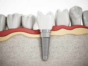 dental implant seated in jawbone