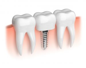 Model of a dental implant.